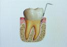 歯周病検査
